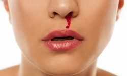 Dream About Nosebleed: 20 Types & Their Meanings